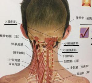 が 痛い 頭 の 後ろ 左
